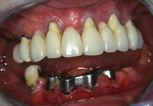 Implant dentaire et laser - Chirurgiens dentistes en France